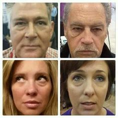 Decoding the Active Ingredient List for Jeunesse Instantly Ageless Under Eye Bags, Oxidative Stress, Eye Contour, Look Younger, Summer Beauty, Active Ingredient, Beauty Trends, Serum, Anti Aging