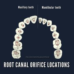 Root canal orifice locations