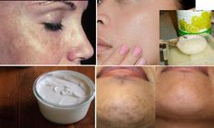 Many black spots or dark patches can be easily lightened or eliminated to restore a glowing facial c...