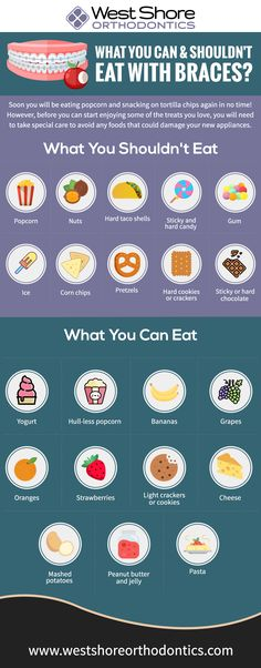 What You Can and Shouldn't Eat With Braces? [Infographic] – Best Infographics What You Can and Shouldn't Eat With Braces? Braces Food To Avoid, Braces Tips, Foods To Avoid, Foods To Eat, Food With Braces, Foods For Braces, Dental Braces, Teeth Braces, Dental Care