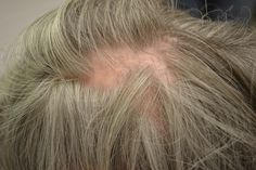 #cureforbaldness  #baldnesscure  #hairbaldnesstreatment  #womenbaldness  #baldnesstreatment  #hair  #loss  #fall  #hairbaldness  #bald  #patternbaldness  #malebaldness  #baldnesscauses  #argan  #arganlife  #arganlife  #arganlifeproducts  #arganlifereview