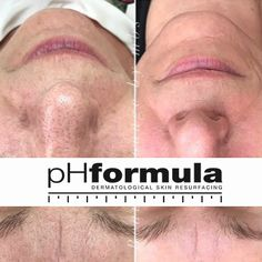 Excellent skin resurfacing results achieved over the last 6 months with repeated treatments at 2-4 weeks intervals, from our pHformula skin specialists in Denmark. Thank you for sharing @beautyloungebymbs #pHformula #skinresurfacing #results #glowingskin #pHformulaDenmark