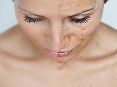 Melasma: What It Is and How to Cure It - Women Daily Magazine