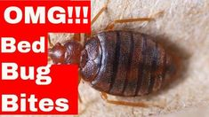 5 Unusual Hacks To Dramatically Cure Bed Bug Bites (Easy to Follow Tips) Bed Bug Bites Treatment, Bed Bugs, Insect Repellent, Home Remedies, The Cure, Hacks, Videos, Tips, Easy
