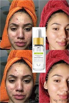 Back Acne Treatment, Natural Acne Treatment, Spot Treatment, Acne Skin, Acne Scars, Acne Face, Tea Tree For Acne, Clear Skin Tips, Skin Care Cream