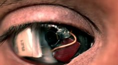 Canadian filmmaker Rob Spence had lost an eye in a shotgun accident, so he had a digital camera implanted into the socket.