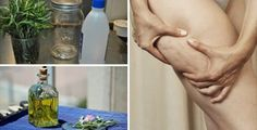 Come sbarazzarsi di cellulite e vene varicose per sempre con il rosmarino