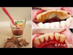 Los dentistas han ocultado este remedio casero para remover el sarro, pero tienes que saberlo!!! - YouTube
