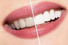 zähne bleichen hausmittel zahnaufhellung zahnbleichung
