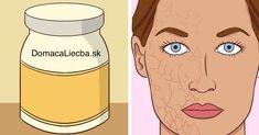 Trápi vás suchá a citlivá pokožka? Komerčné krémy často viac uškodia ako pomôžu. Namiesto nich použite týchto 10 prírodných látok.