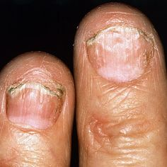 Psoriasis Remedies - 10 Psoriatic Arthritis Symptoms - Professors Predicted I Would Die With Psoriasis. But Contrarily to their Prediction, I Cured Psoriasis Easily, Permanently & In Just 3 Days. Nail Psoriasis, What Is Psoriasis, Psoriasis Diet, Psoriasis Remedies, Psoriatic Arthritis Symptoms, Autoimmune Arthritis, Psoriasis Arthritis, Inflammatory Arthritis, Polymyalgia Rheumatica
