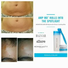 Facial Anatomy Malar Fat Pads Beautify Me Pinterest