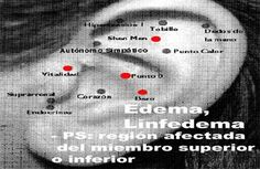 ASOCIACION INTERNACIONAL ACUPUNTURA TRADICIONAL VADEMACUM ORIENTATIVO PROF. DR. FERNANDO LURUEÑA: E Ear Reflexology, Edema, Mudras, Natural Medicine, Acupuncture, Ayurveda, No Worries, Psychology, Health