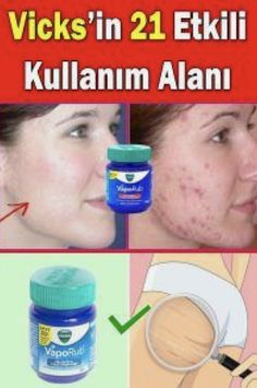 What are Vicks good for? How to do belly melting with Vicks? # Informations About Vicks nelere iyi gelir? Pin You can … At Home Hair Removal, Hair Removal Cream, Vicks Vaporub Uses, Uses For Vicks, Belly, Health Care Reform, Fitness Tattoos, Unwanted Hair, Homemade Skin Care