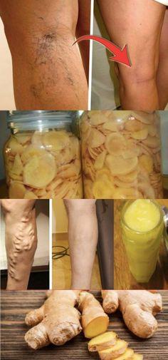 Suco de Gengibre com Canela Para Eliminar Varizes Rapidamente #gengibre #varizes #eliminarvarizes #tratamentocaseiro
