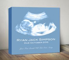 Ultrasound Canvas, Sonogram Art Print, Baby Shower Gift, Personalized Baby Birth Gift, Pregnancy Wall Art, Expecting Parent Gift Ultrasonic