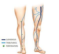 varicocele natural treatment | Varicocele Treatment | Pinterest ...