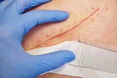 Wounds are a gateway for microorganisms. For this reason it is important to know the wound healing stages, how to clean and close them. Wound Healing, Strong Hair, Hearing Aids, Blood Vessels, How To Make Hair, Natural Treatments, Deodorant, Tips, Study