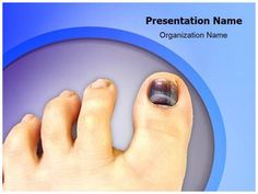 Nail Hematoma PowerPoint Presentation Template is one of the best Medical PowerPoint templates by EditableTemplates.com. #EditableTemplates #Runner #Blood Clot #Hammer #Blood #Toe #Wound #Work #Finger #Health #Injury #People #Nail #Subungual #Accident #Foot #Pain #Tennis #Nail Hematoma #Fingernail #Workplace #Smashed #Toenail #Medical #Hematoma #Underneath #Collection #Condition #Safety #Bruise #Physical Injury #Under #Pinched #Human Toe
