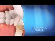 La importancia de cuidar nuestra #sonrisa, Ortodoncia #Invisalign®