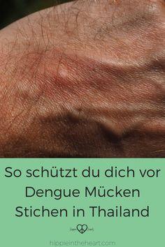 Dengue Fieber auf Reisen - So schützt du dich vor dem Stich einer Tigermücke. Diese Maßnahmen helfen dir dich vor Dengue zu schützen. #reisen #thailand #dengue #moskito #sicherheit #urlaub #thailand #asien #tropen