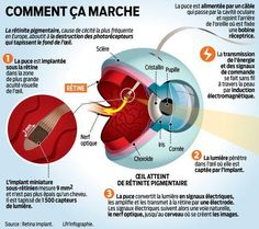 L'œil bionique que les Français attendent