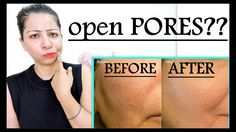 Home Remedies for Open Pores | How to Get Rid of Large/Open Pores| 100% ...