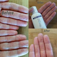 Wohoo Hydro Hands! This is BANANAS! After two weeks of use my eczema has improved a great deal. I have smoother hands with less cracks, flakes, itching and redness. I looked at the ingredient list to see what was in this miracle cream I found a special ingredient known to help eczema, BANANA! That's right, banana helps eczema for some people and I happen to be one of those people. If you need some Hydro Hands in your life send me a message or check out my website… Bananas, Flakes, Personal Care, Hands, River, Shit Happens, Cream, Website, People
