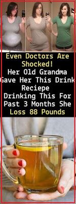 Even Doctors Are Shocked! Her Old Grandma Gave Her This Drink Recipe Drinking This For Past 3 Months She Loss 88 Pounds Even Doctors Are Shocked! Her Old Grandma Gave Her This Drink Recipe Drinking This For Past 3 Months She Loss 88 Pounds Diet Drinks, Healthy Drinks, Get Healthy, Healthy Life, Health And Beauty, Health And Wellness, Health Tips, Fitness Diet, Health Fitness
