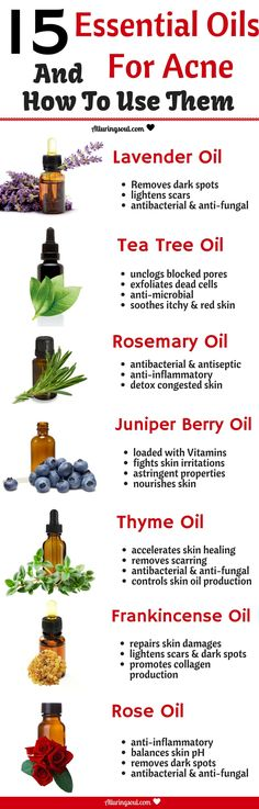 Use these Essential Oil For Acne and get clear skin. These essential oils help treat acne, dark spots, scars and redness.