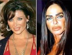 Michaela Romanini bad plastic surgery. She looks like a Trout.
