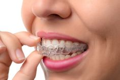 Teeth straightening with invisible braces is one way for patients in the Brookline area to achieve a more beautiful smile! Contact Alpha Plus Dental Center! Dental Health, Dental Care, Smile Dental, Dental Braces, Braces Smile, Kids Braces, Teeth Braces, Invisalign, St Lucie