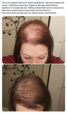 This is makes me want to cry. Real Results with Monat 5 weeks. She is so excited about her hair growth. And no more painful steroid shots or Nioxin, Rogaines harsh chemicals.
