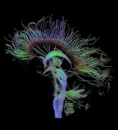 Visualization of a DTI measurement of a human brain. Depicted are reconstructed fiber tracts that run through the mid-sagittal plane. Especially prominent are the U-shaped fibers that connect the two hemispheres through the corpus callosum (the fibers come out of the image plane and consequently bend towards the top) and the fiber tracts that descend toward the spine (blue, within the image plane)
