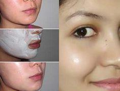 Ideas Baking Soda Skin Care Acne Scars For 2019 Acne Mask, Skin Mask, Homemade Face Masks, Homemade Skin Care, Glow Skin, Tips Belleza, Fitness Workouts, Skin Tips, Facial Masks