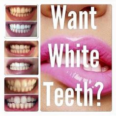 Time for another fun day in the office helping people to smile more and smile brighter. Book online at sandradownie.com or call 614 208 8468 or email jdtteethwhitening@gmail.com for information specials and mobile teeth whitening. Happy Tuesday! by jdtteethwhitening Our Teeth Whitening Page: http://www.lagunavistadental.com/services/cosmetic-dentistry/teeth-whitening/ Other Cosmetic Dentistry services we offer: http://www.lagunavistadental.com/services/cosmetic-dentistry/ Google My Business…