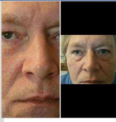 This is my cousin  .has never had a product  work like this before ..ask how u can get a sample ! LaurieL13.jeunesseglobal.com
