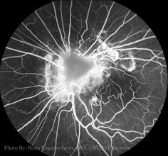 Rona Esquejo Leon CRA Fluorescein OphthalmicPhotography Ophthalmology
