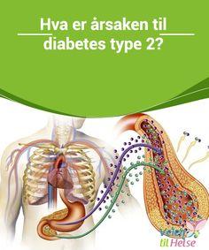 Hva er årsaken til diabetes type 2?  #Diabetes type 2 er en av de mest vanlige #sykdommene i dag, og en av de sykdommene som øker raskest i antall #rammede. Selv om det ikke er smittsomt, #ansees det å være en epidemi i det 21.