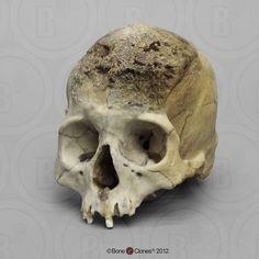 Female Skull | Human Female Skull, Meningioma - Bone Clones, Inc ...
