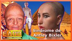 Las enfermedades mas raras del mundo (SINDROME DE ANTLEY BIXLER), la enf...