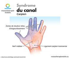 Massothérapie Mobile Sherbrooke, Accueil, Massothérapeutes, Magog   Syndrome du canal carpien