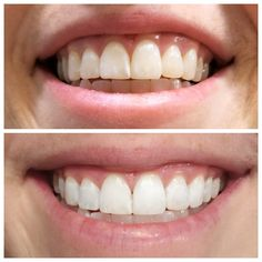 At home teeth whitening: does it work?