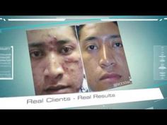 The correct cosmeceutical regimen slows down excess oil production, helps dissolve and exfoliate pore clogs and function well with prescription medications. It is essential that the cosmeceuticals are non-irritating yet effective. The complete Revoderm Pharma acne line has been precisely engineered to achieve that exact therapeutic goal. www.revoderm.com