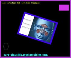 Sinus Infection And Tooth Pain Treatment 085955 - Cure Sinusitis