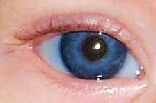 Violet Eye Color in Humans | Color de ojos en pacientes con albinismo oculacutáneo severo, en ...
