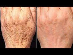 Diy Beauty, Beauty Skin, Beauty Hacks, Brown Spots On Hands, Facial Tips, Health And Beauty Tips, Makeup Trends, Herbal Remedies, Good Skin