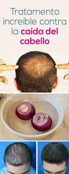 Remedios caseros para caida del cabello, calvicie y caspa #cabello #remedios #homeremedy #baldness