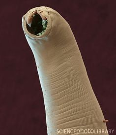 Hookworm. Coloured scanning electron micrograph (SEM) of the head of the parasitic nematode worm Ancylostoma ceylanicum. Hookworms live in the intestines of their host. The head contains several tooth-like structures which it uses to cling to the intestinal wall. They are responsible for widespread morbidity and mortality in animals primarily due to their blood-sucking activities in the intestine. Larvae enter the bloodstream by ingestion or by skin penetration. Magnification: x200 when prin...