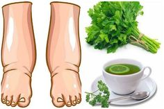 Watch This Video Ambrosial Home Remedies Swollen Feet Ideas. Inconceivable Home Remedies Swollen Feet Ideas. Foot Remedies, Hair Remedies, Skin Care Remedies, Health Remedies, Natural Remedies, Cellulite, Parsley Tea, Water Retention Remedies, Cold And Cough Remedies